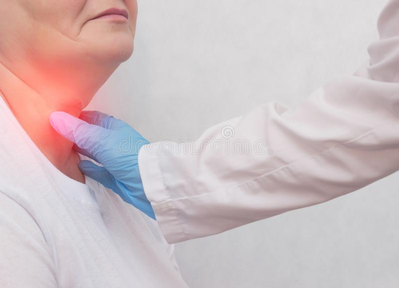 Adult woman on reception at the doctor who has problems with the thyroid gland and the endcrine system, close-up, patient. Carcinoma, symptom stock photography
