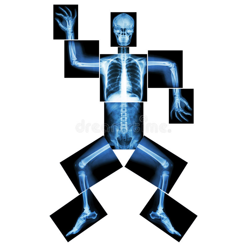 Aerobic Dance(human bone is dancing). Aerobic Dance (human bone is dancing) ,( Whole body x-ray royalty free illustration