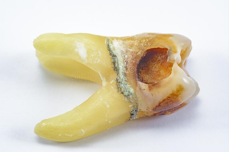 Affected by caries, destroyed with a large cavity, removed human tooth with large roots, chewing molar tooth, wisdom tooth, tooth. Extraction operation, dental royalty free stock photos