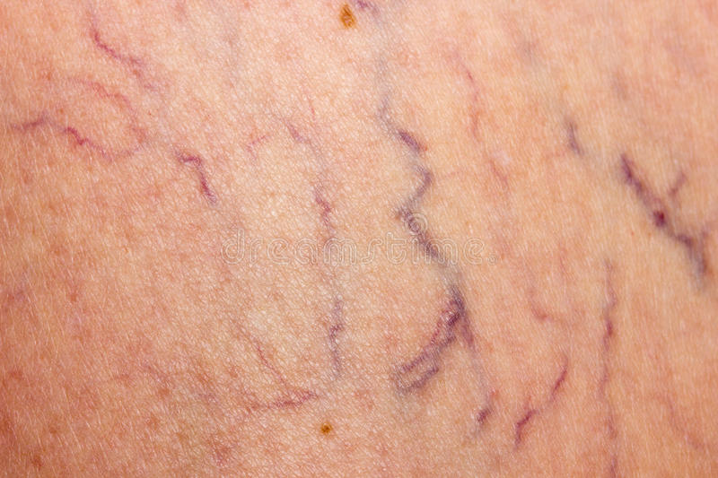 Affected by varicose veins stock photo