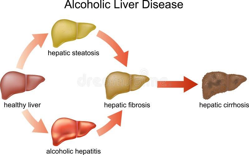 Affection hépatique alcoolique illustration stock