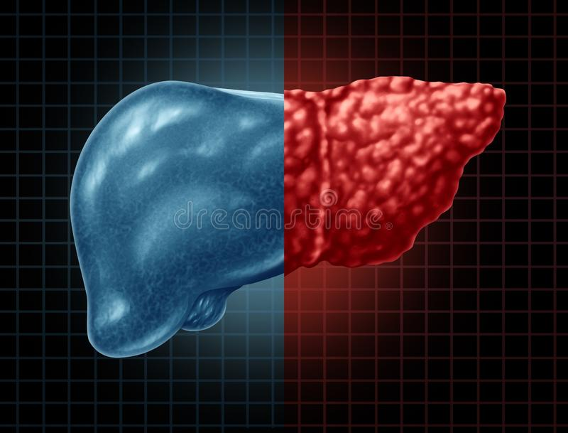 Affection hépatique de stéatose hépatique illustration de vecteur