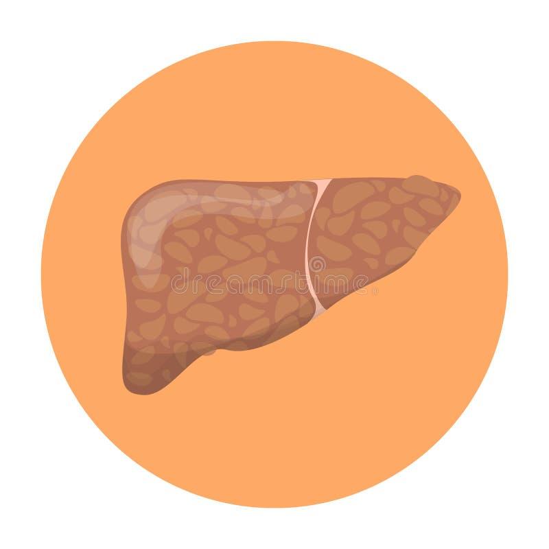 Affection hépatique de stéatose hépatique Idée des soins de santé et de la mauvaise nutrition illustration stock