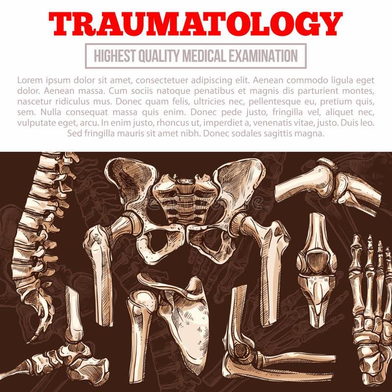 Affiche de médecine de Traumatology avec l'os et l'articulation illustration libre de droits