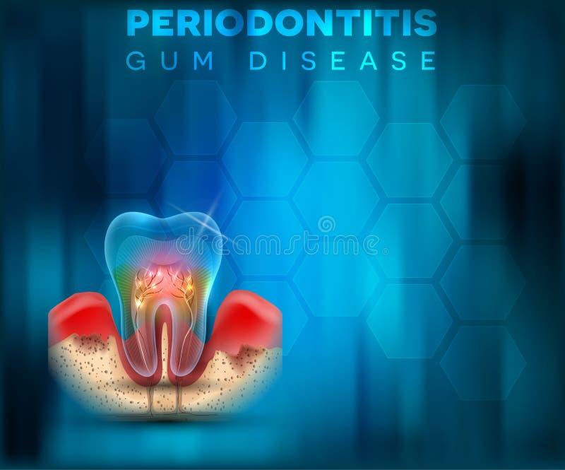Affiche de maladie des gencives de Periodontitis illustration stock
