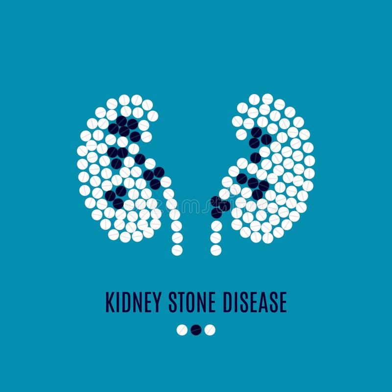 Affiche de pilules de la maladie de calcul rénal illustration stock