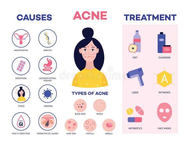 Affiche montrant les causes et les méthodes de traiter l'illustration plate de vecteur d'acné illustration stock