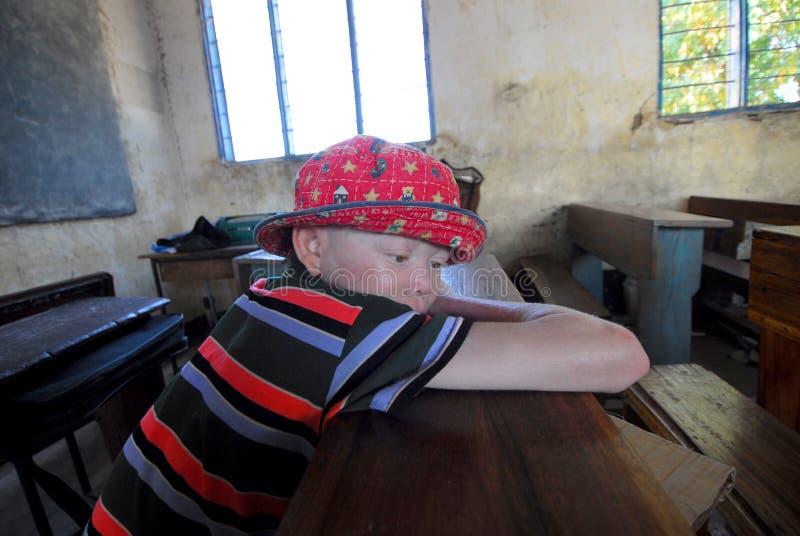 African albino royalty free stock photos