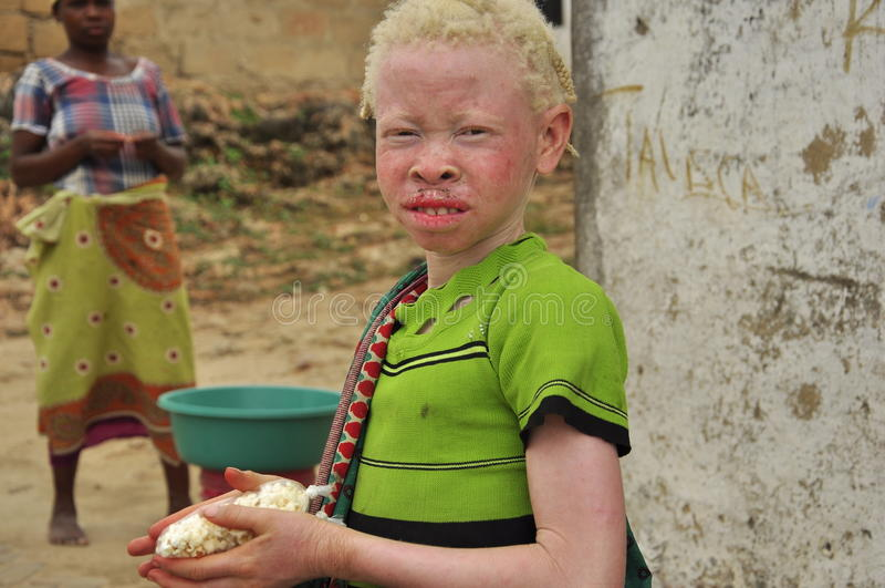 Afrika albinobarn royaltyfria foton