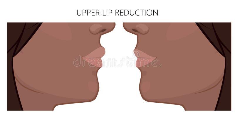 Afroamerican уменьшения губы view_Upper верхней грани иллюстрация вектора