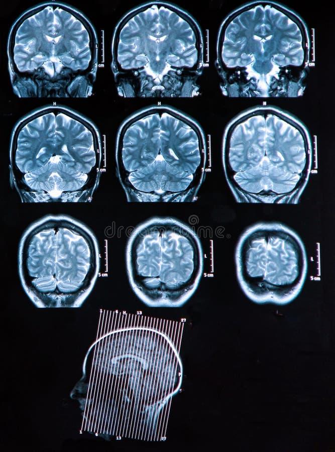 Het Aftasten van de Hersenen van Mri stock afbeeldingen