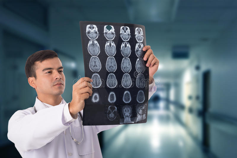 Aftasten van de hersenen xray film royalty-vrije stock afbeelding