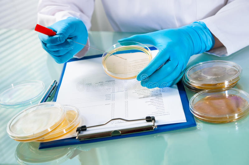 Agar plate with growing germs. Germs growing on an agar plate in laboratory royalty free stock photos