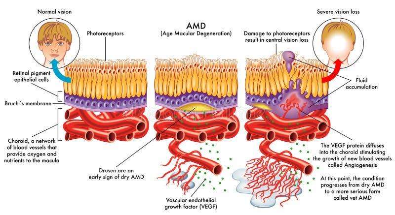Age related macular degeneration vector illustration
