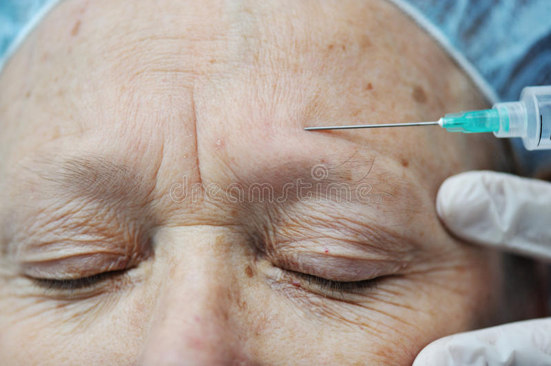 Aged female receiving botox royalty free stock photography