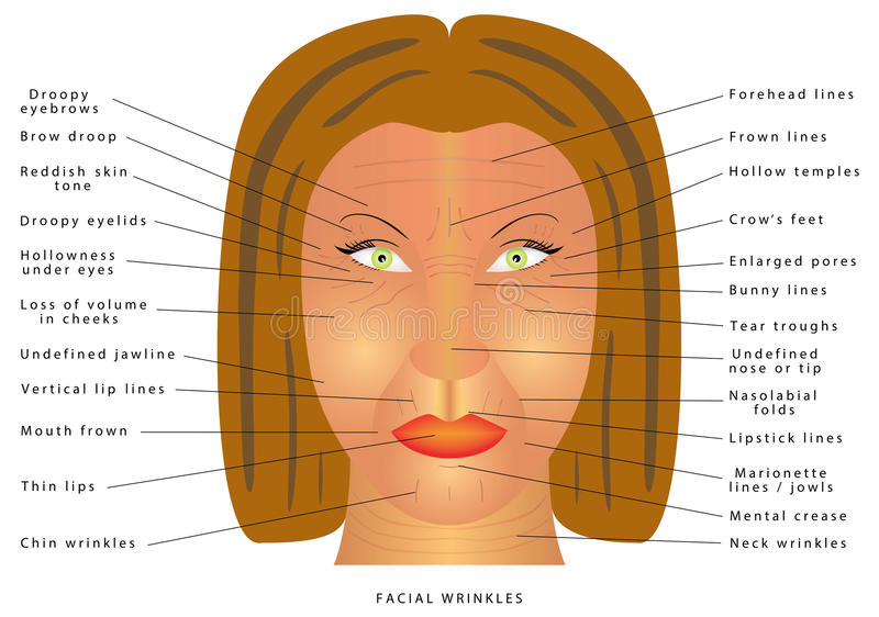 Ageing face changes. Facial Wrinkles. Folds and wrinkles on the face of woman. Wrinkles and skin of elderly. Correction of wrinkles on face. Causes of wrinkles stock illustration
