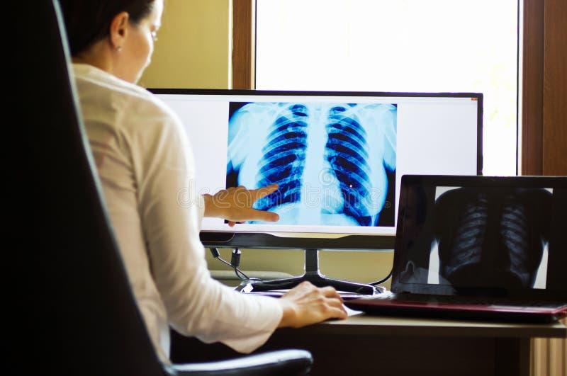 Aggiusti il tecnico radiografico che esamina il raggio di x sullo schermo di computer fotografie stock libere da diritti