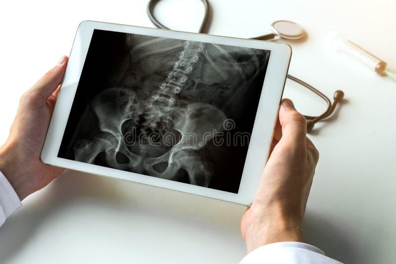 Aggiusti la sorveglianza dei raggi x delle anche e della spina dorsale per il dolore alla schiena sulla compressa digitale Concet immagini stock libere da diritti