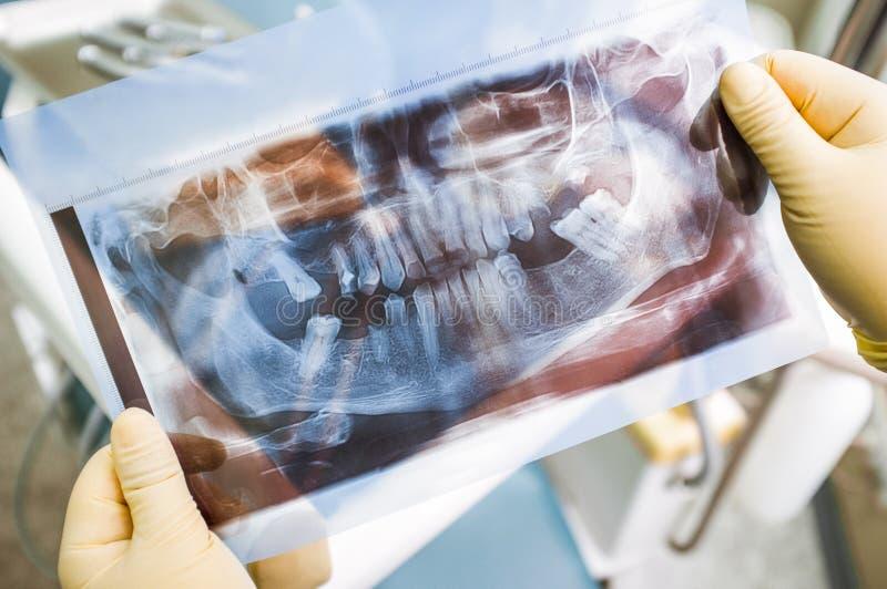 Agomphiasis exempel på panorama- röntgenstrålebildläsning royaltyfri bild