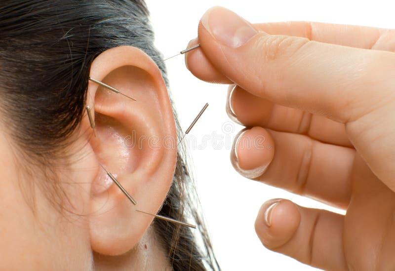Agopuntura immagine stock
