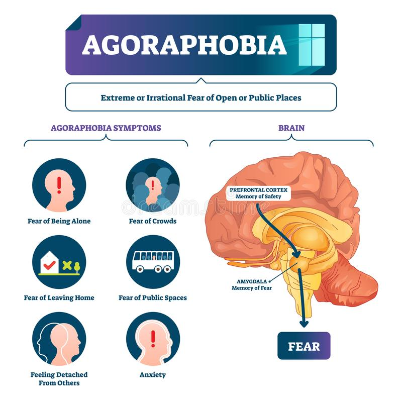 Agoraphobia vector illustration. Labeled anatomical fear explanation scheme. Emotional mental process with unreasonable irrational awareness from open public stock illustration