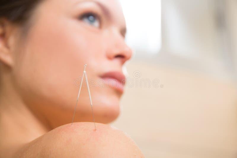 Aguja de la acupuntura que pincha en hombro de la mujer fotografía de archivo