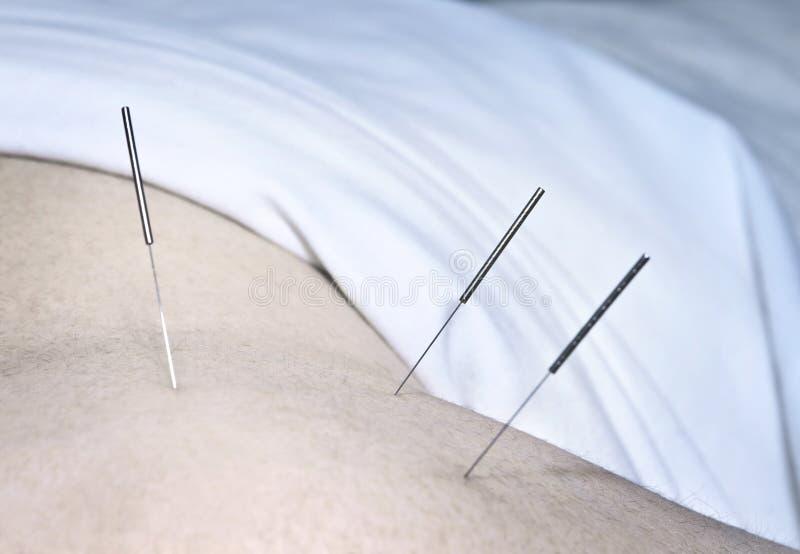 Agulhas da acupunctura no ombro fotografia de stock