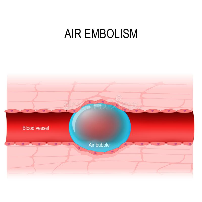 Air embolism is a blood vessel blockage. vector diagram vector illustration