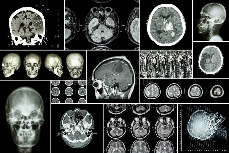 Ajuste, coleção da doença de cérebro (infarto cerebral, curso hemorrágico, tumor cerebral, herniation do disco com os comp(s) da  imagens de stock royalty free