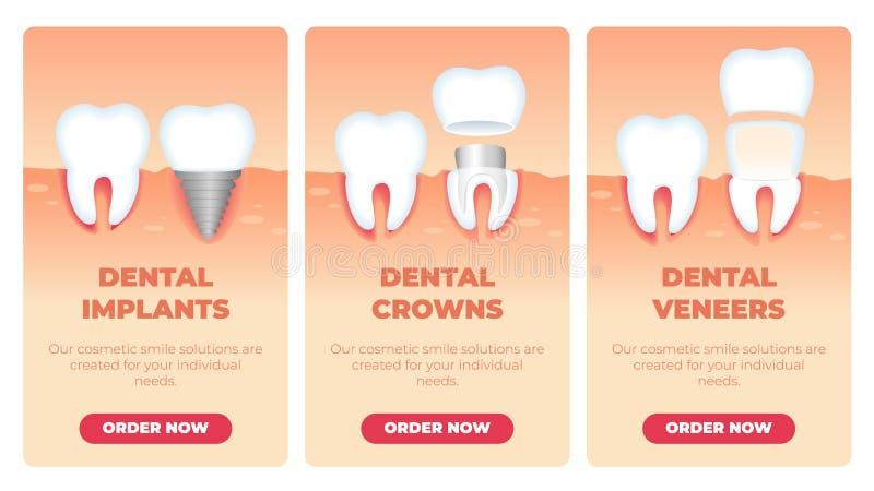 Ajuste a inscrição que os implantes dentais coroam folheados ilustração stock