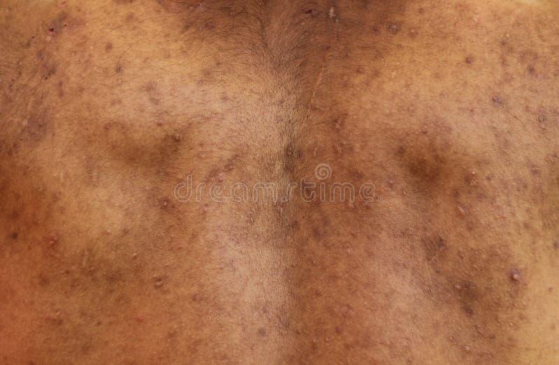 Akne auf der Rückseite stockbild