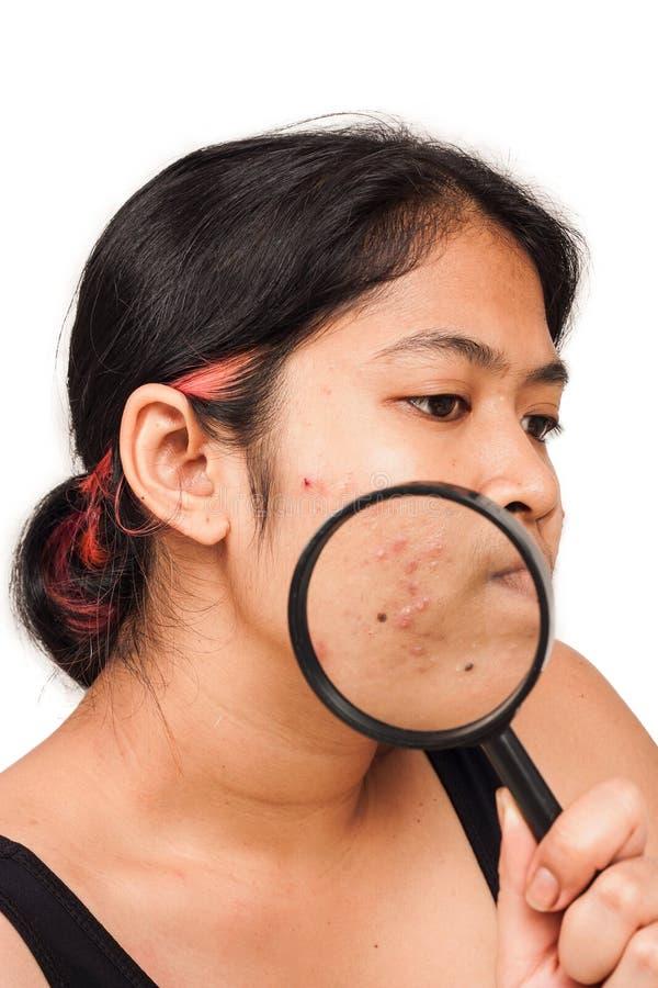 Akne auf Hautgesichtsfrauen stockfotos