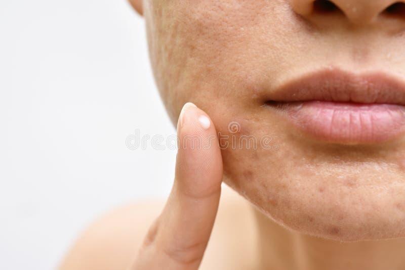 Akne- och framsidahudproblem, kvinna som applicerar aknekrämläkarbehandlingen arkivbild