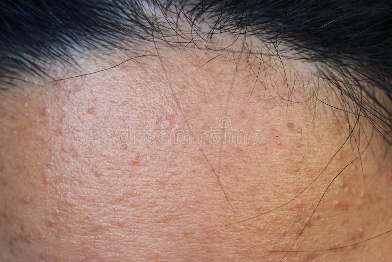 Akne på huden, akne på framsidan som orsakas av hormonet arkivbilder