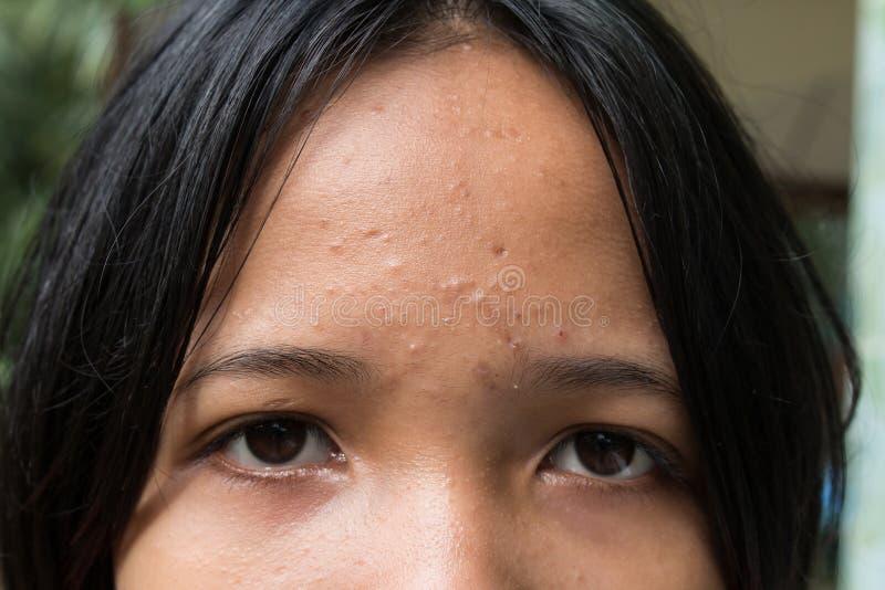 Akne på hudframsida royaltyfri bild