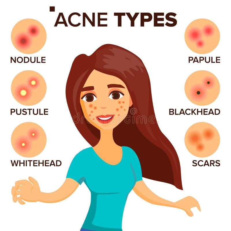 Akne schreibt Vektor Mädchen mit Akne Zutreffen des transparenten Lacks Behandlung, gesund Knötchen, Whitehead Lokalisierte flach stock abbildung