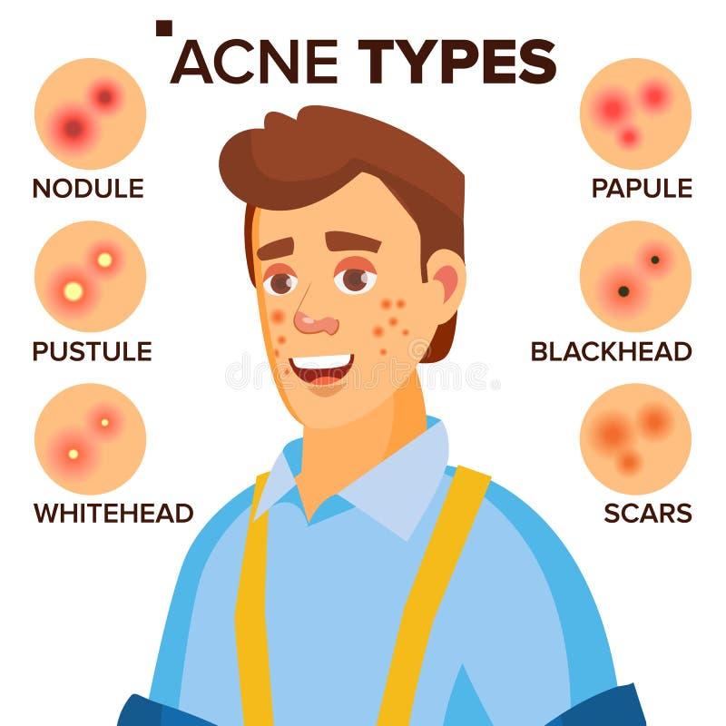 Akne schreibt Vektor Mann mit Akne Gesichtshaut-Probleme Papule, Pustulem Scards Lokalisierte flache Zeichentrickfilm-Figur vektor abbildung