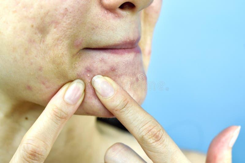 Akneeiter, schließen herauf Foto des anfälligen Hautproblems der Akne, die Frau, die Pickel mit den schmutzigen bloßen Händen zus stockbilder