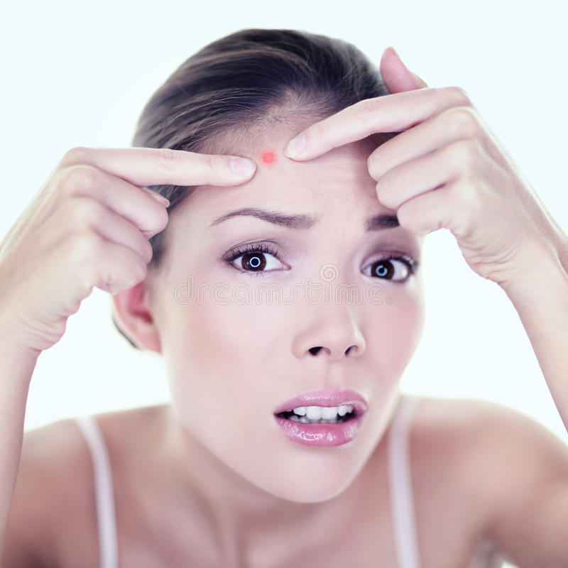 Aknepickelhautverunstaltungsstellen-Hautpflegemädchen stockbild