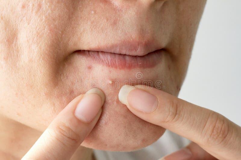 Aknevar, slut upp fotoet av benägen hud för akne, kvinna som pressar hennes finne arkivbilder