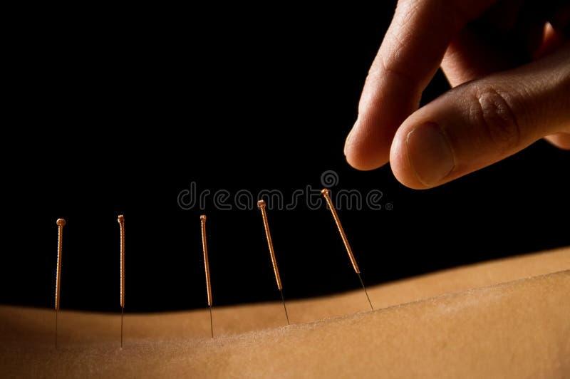 Akupunktur lizenzfreie stockfotos