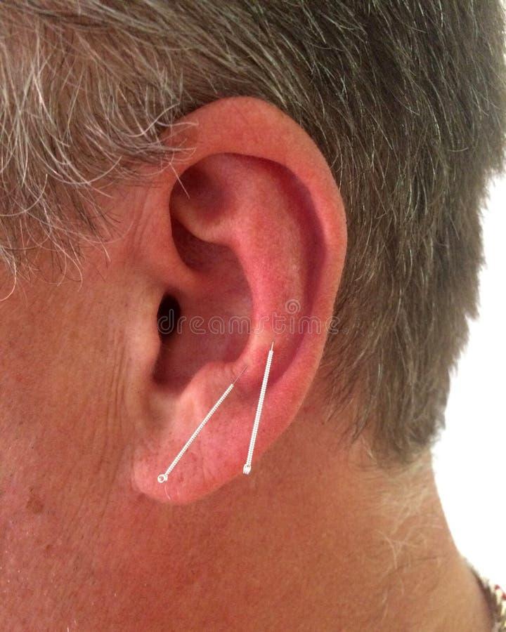 Akupunktur auf den Ohren eines Mannes stockfoto