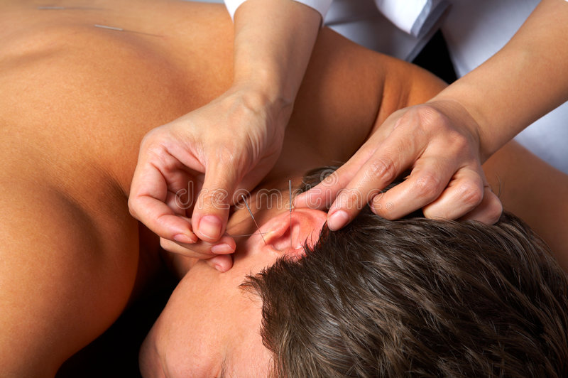 Akupunktur des Ohrs lizenzfreies stockbild