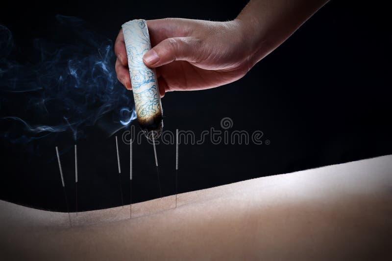Akupunktur och moxibustion--en traditionell metod för kinesisk medicin arkivfoto