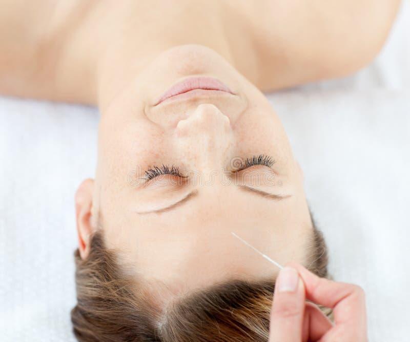 akupunktur som har ståendeterapikvinnan royaltyfri foto