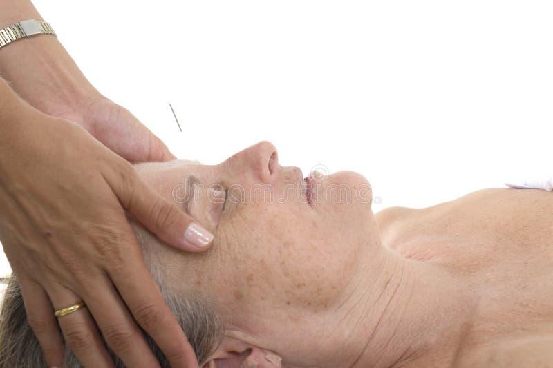 akupunktura obraz stock