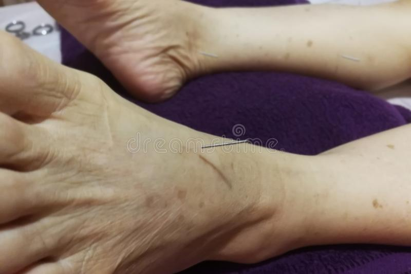 Akupunkturbehandling - kinesisk medicin royaltyfri foto