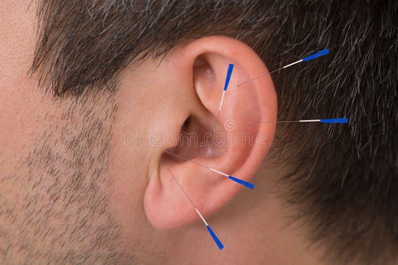 Akupunkturnadeln auf Ohr stockfotografie