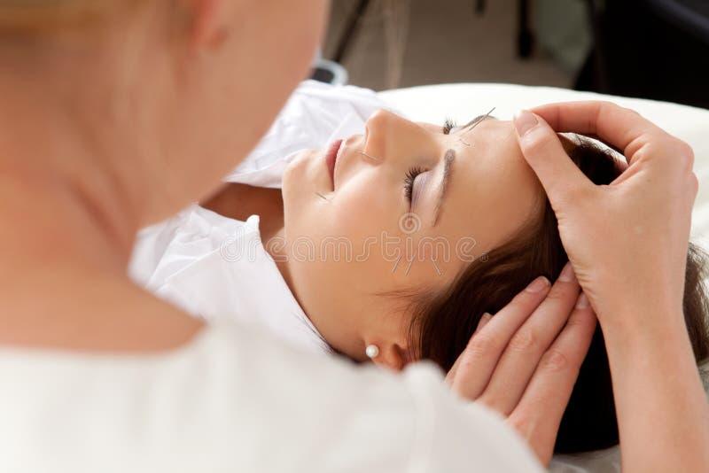 akupunktury facial zdjęcia stock