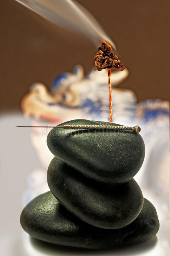 Akupunktury moxibustion i igła obrazy stock